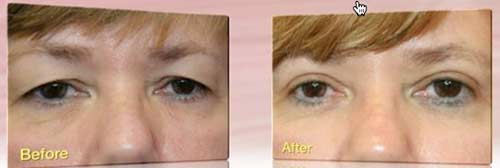 Blepharoplasty: before and after